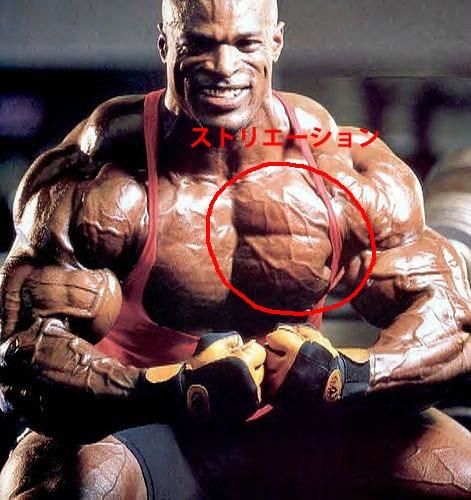 ストリエーションの見える筋肉